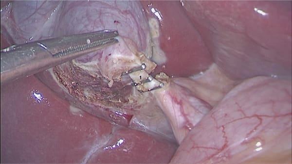 cholecystiteaigue calculs vesicule biliaire symptomes calculs biliaires symptomes chirurgie digestive paris docteur berger chirurgien visceral paris 8 3