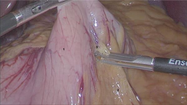 nissen sleeve gastrique chirurgie obesite chirurgie bariatrique paris chirurgie viscerale docteur berger chirurgien visceral paris 8 1