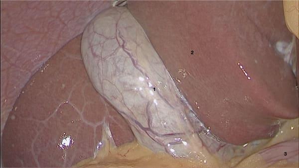 vesicule biliaire normale calculs vesicule biliaire symptomes calculs biliaires symptomes chirurgie digestive paris docteur berger chirurgien visceral paris 8