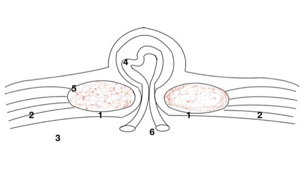 cure d eventration estomac eventration ombilicale eventration que faire eventration symptomes chirurgie digestive paris docteur berger chirurgien visceral paris 8